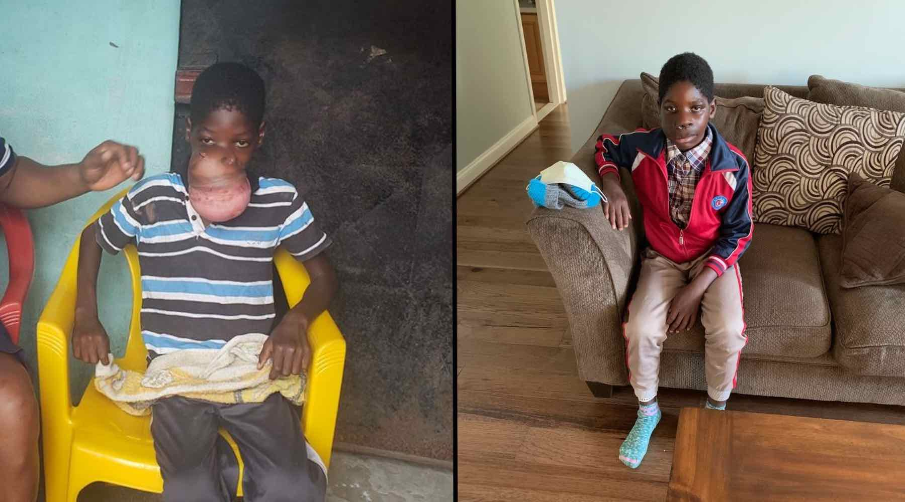 Baptists Help Liberian Boy Receive Life-Changing Surgery